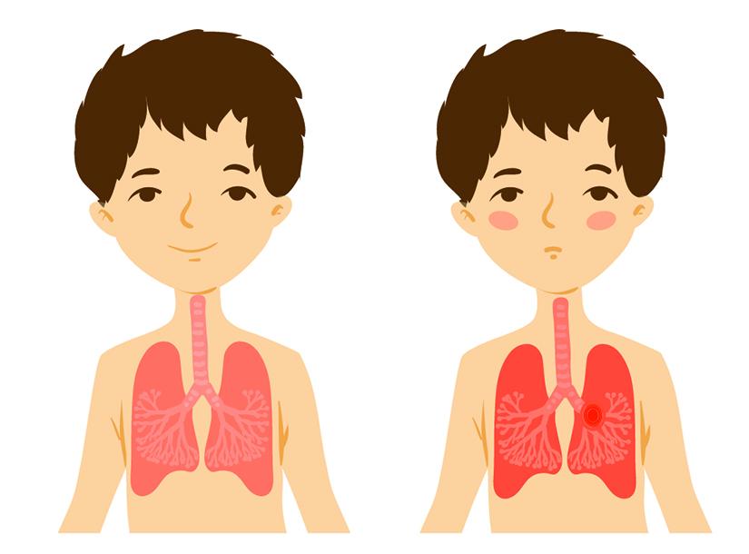 suspiciune de pneumonie la un copil)