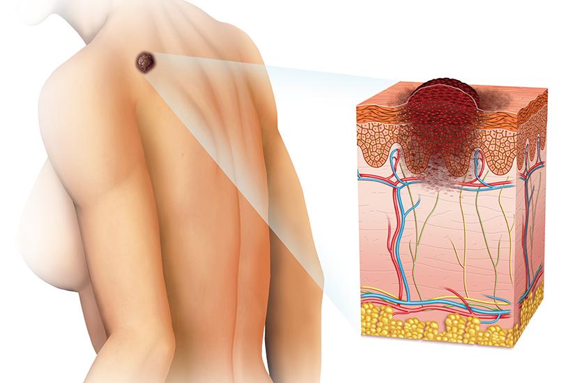 Semne ale Cancerului de piele