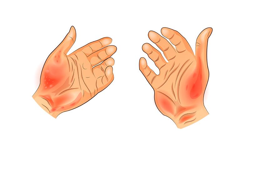 Eczema mâinilor | Arcadia Spitale si Centre Medicale