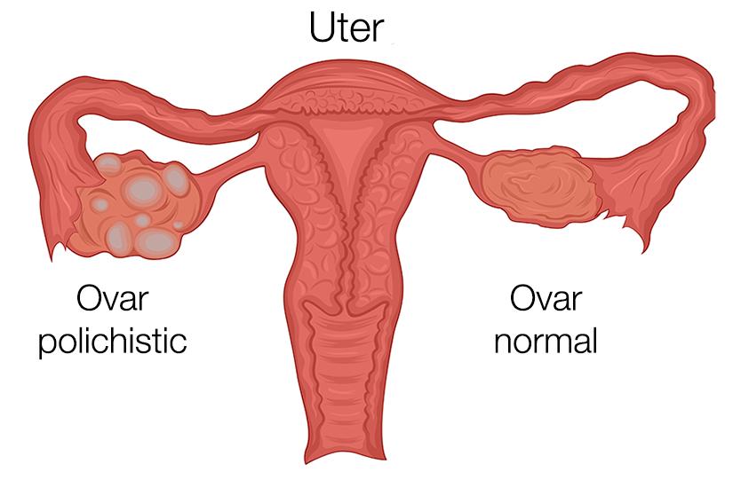 boala ovarului polichistic și pierderea în greutate)