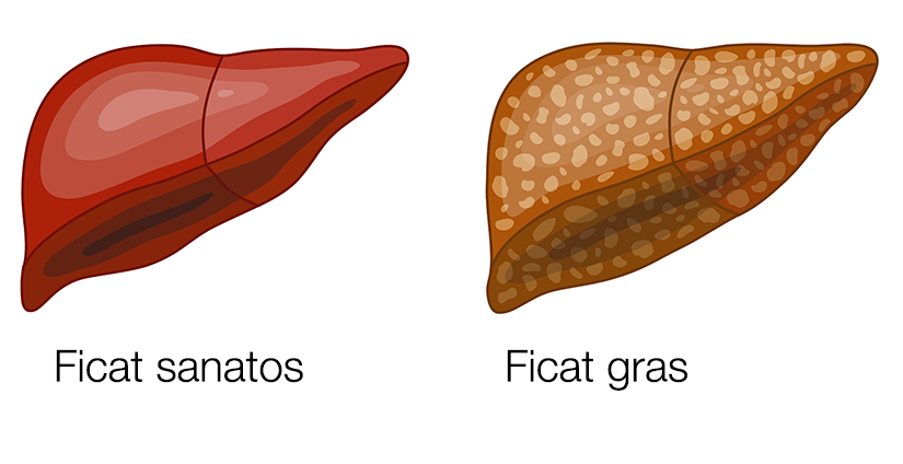 Boala ficatului gras non-alcoolic