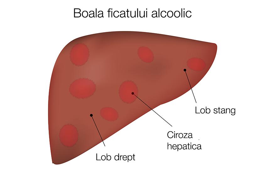 Boala ficatului alcoolic | in2constient.ro