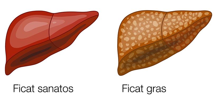 Boala celiacă (intoleranța autoimună la gluten): simptome, diagnostic, tratament