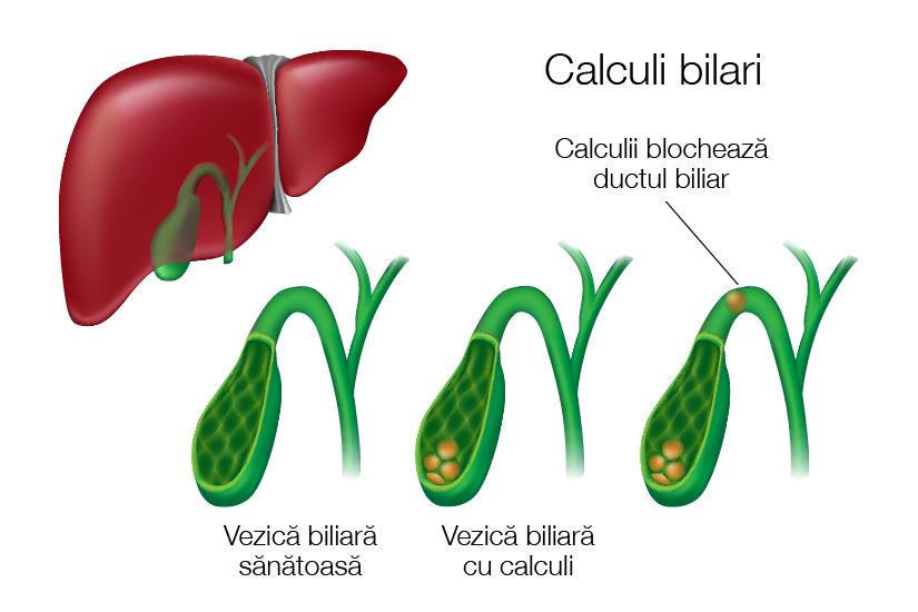 tratament articular pentru știucul biliar cracare și dureri la nivelul articulațiilor