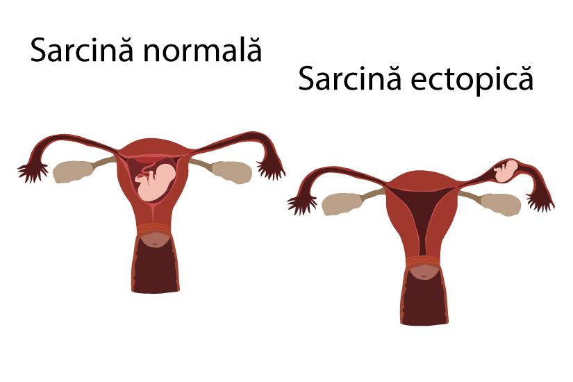 Cauta? i anticorpi neregula? i Femeia insarcinata