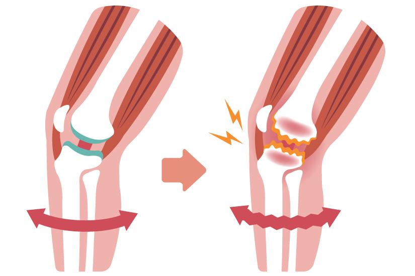 pregătirea creșterii cartilajelor)