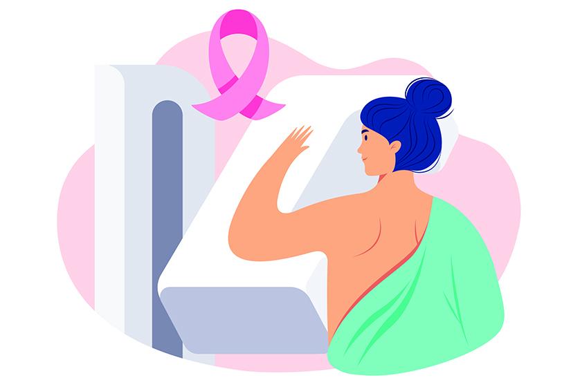 cancer mamar cauze si simptome
