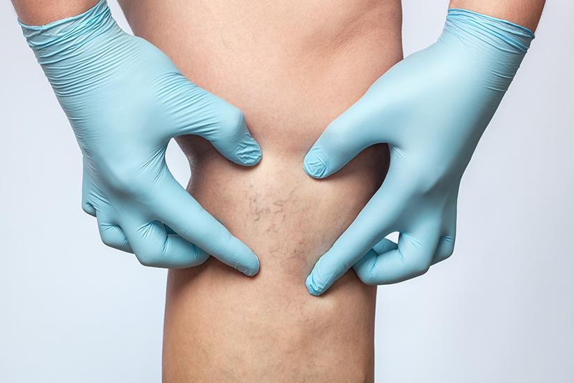 este posibil să înoțiți în varicoză