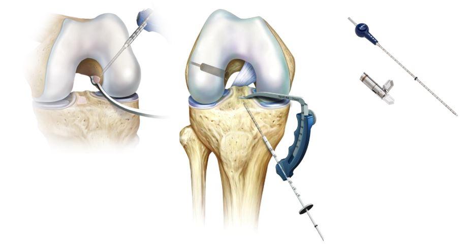 medicamente pentru osteochondroza articulației umărului unguent pentru inflamația articulațiilor și mușchilor
