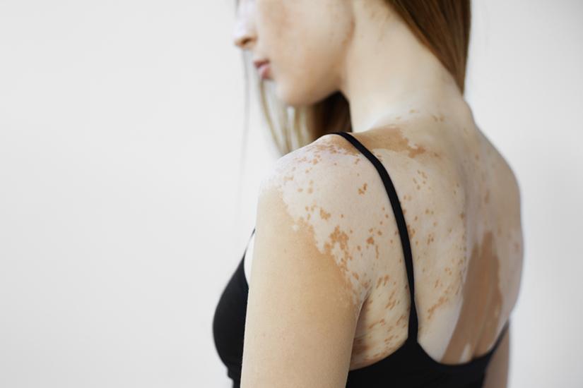 Tipuri de vitiligo