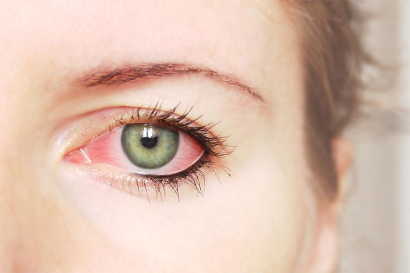 consecințe după pierderea vederii