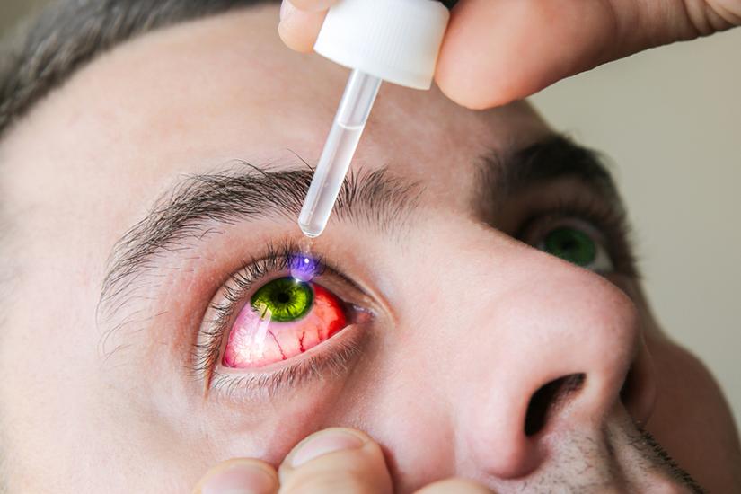 recomandări diagnostice pentru ochi cu mâncărime