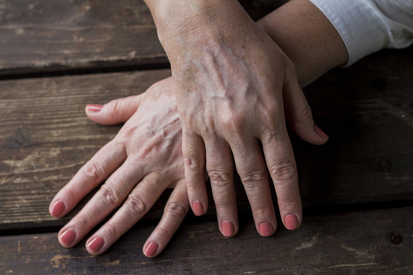 Forme de vitiligo