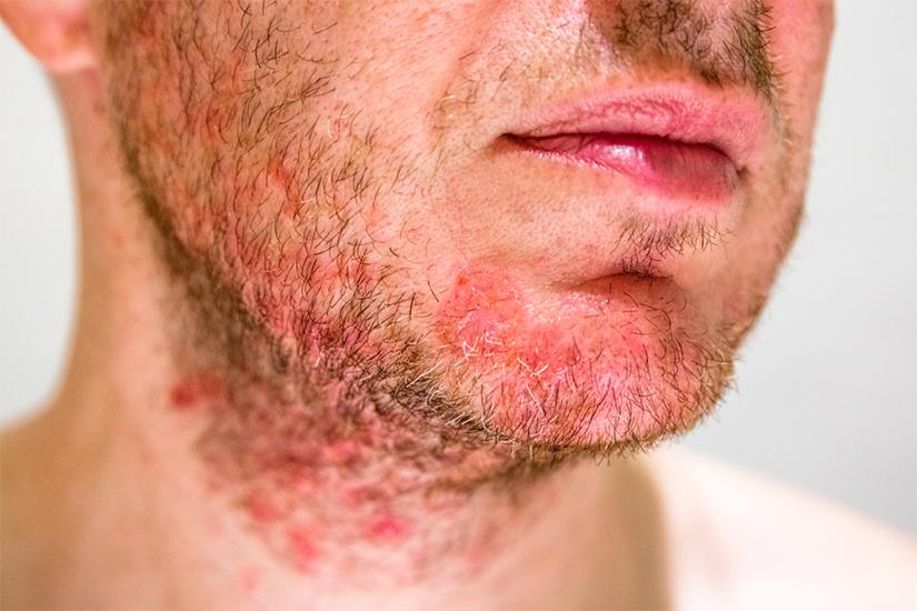 Dermatita seboreica pe ten