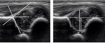 ecografii articulatii cum să consolideze ligamentele medicamentelor articulațiilor genunchiului