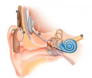auzul cu implant cohlear