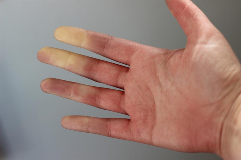 poate amorța mâinile de artrită)