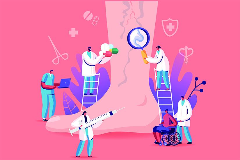 ce consiliază medicii de la varicoză