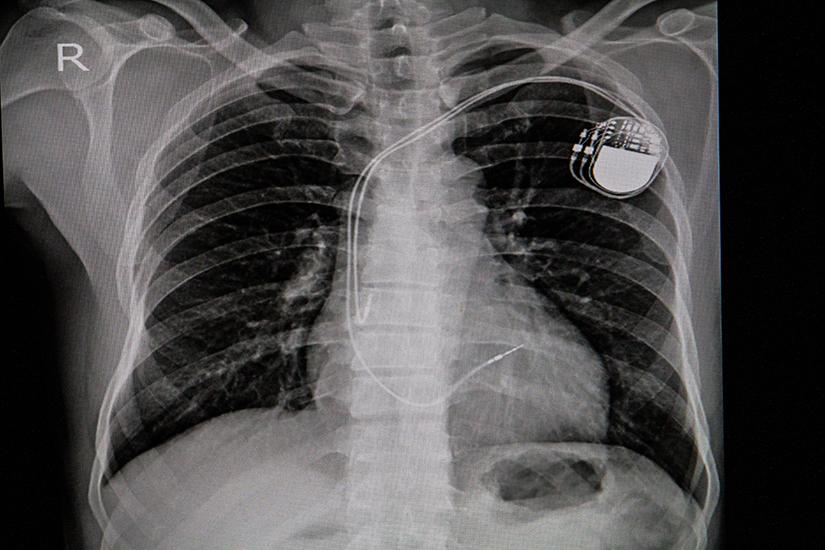pierderea în greutate după stimulatorul cardiac