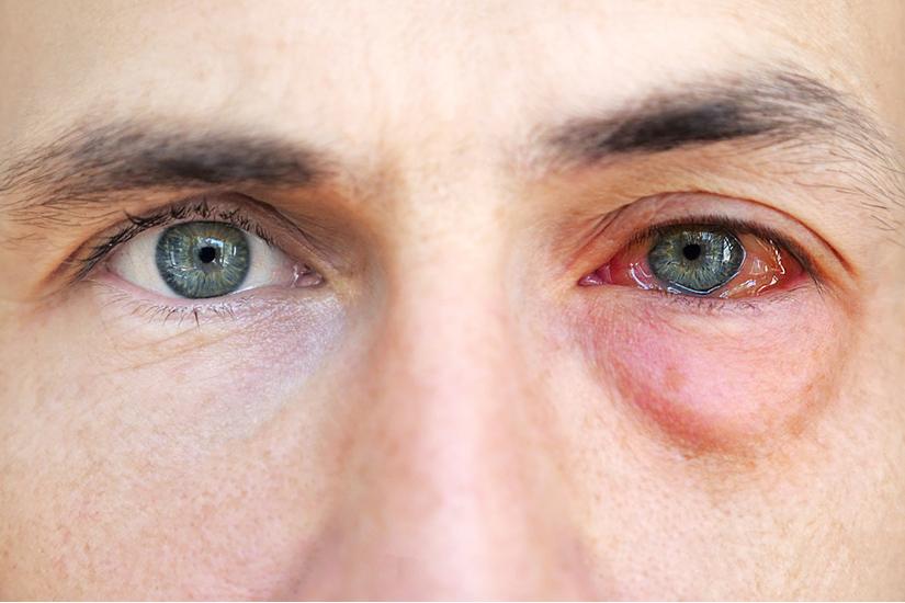 Keratita simptome