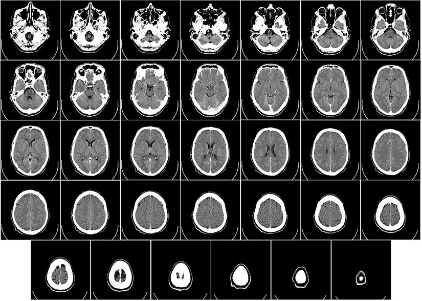 Simptome tumoare cerebrala