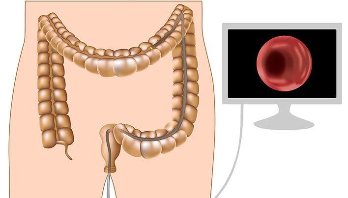 cum să faci cancerul de sânge rapid