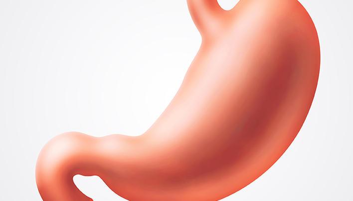 Cancer la stomac | Simptome si diagnostic | Dictionarul SANADOR