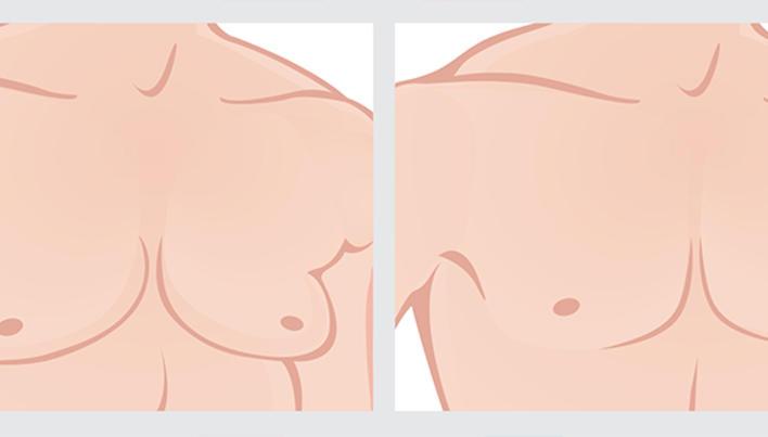 cancer mamelon barbati tratamentul papilomului în gură