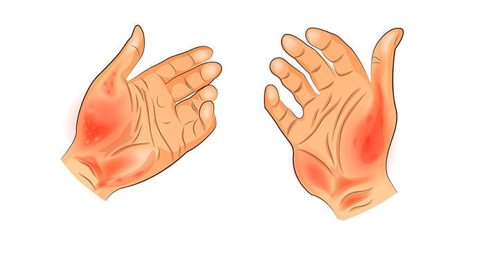 dermatita alergică între degete)