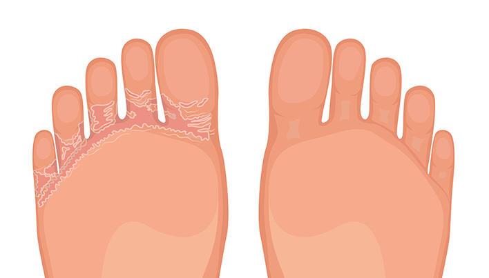 Ciuperca piciorului tratament lamisil