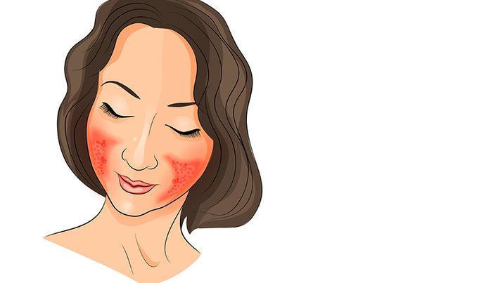tratamentul inflamației faciale)