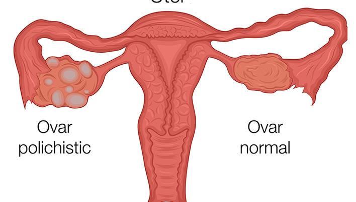 Sindromul Ovarelor Polichistice - Dr. Ioan Boleac