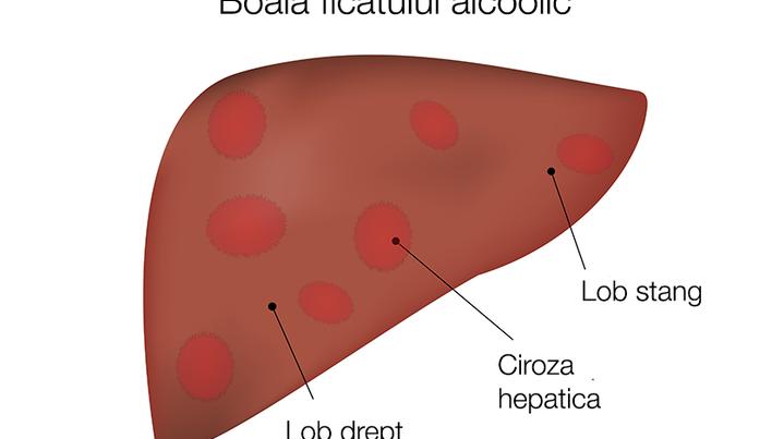 Afecțiuni hepatice și varice