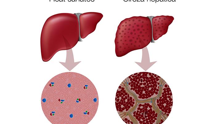 hepatita b simptomele pierdere în greutate
