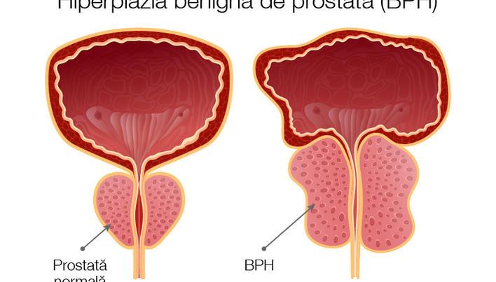 cum sunt conectate prostata și erecția