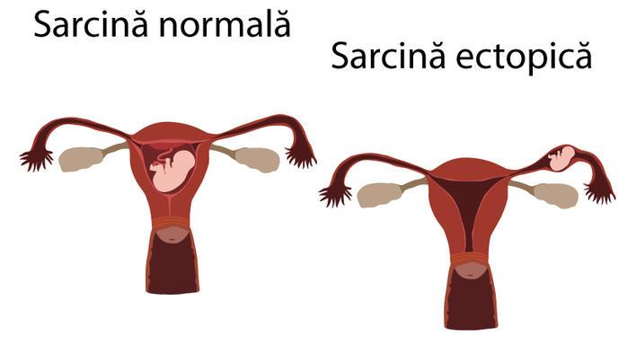 etapa inițială varicoasă în timpul sarcinii
