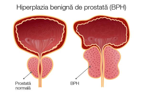 prostatita penisului)