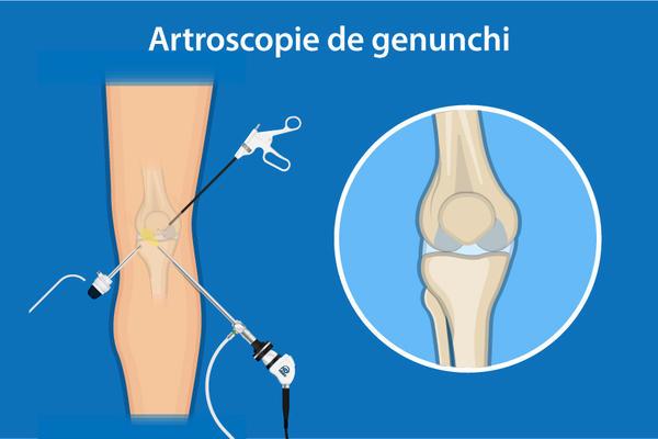 de ce durează articulațiile genunchiului noaptea)