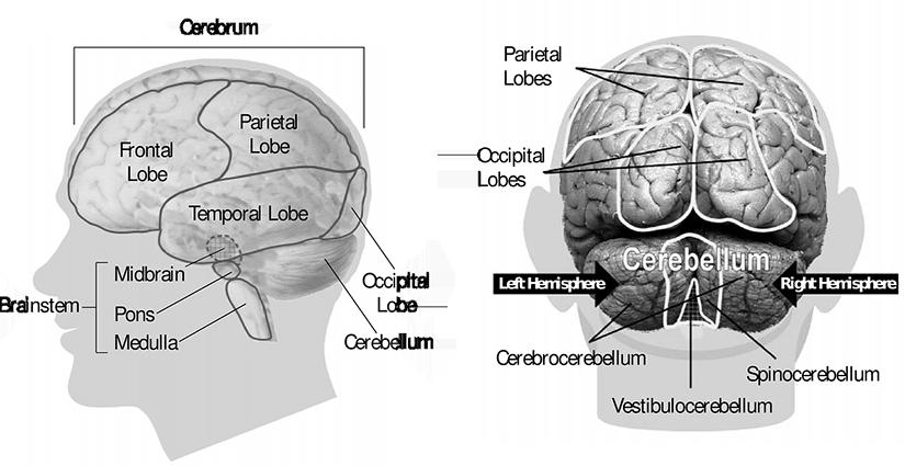 Tumoare cerebrala