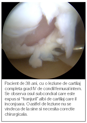 articulații dureroase ale mâinii drepte gel de colagen pentru articulații